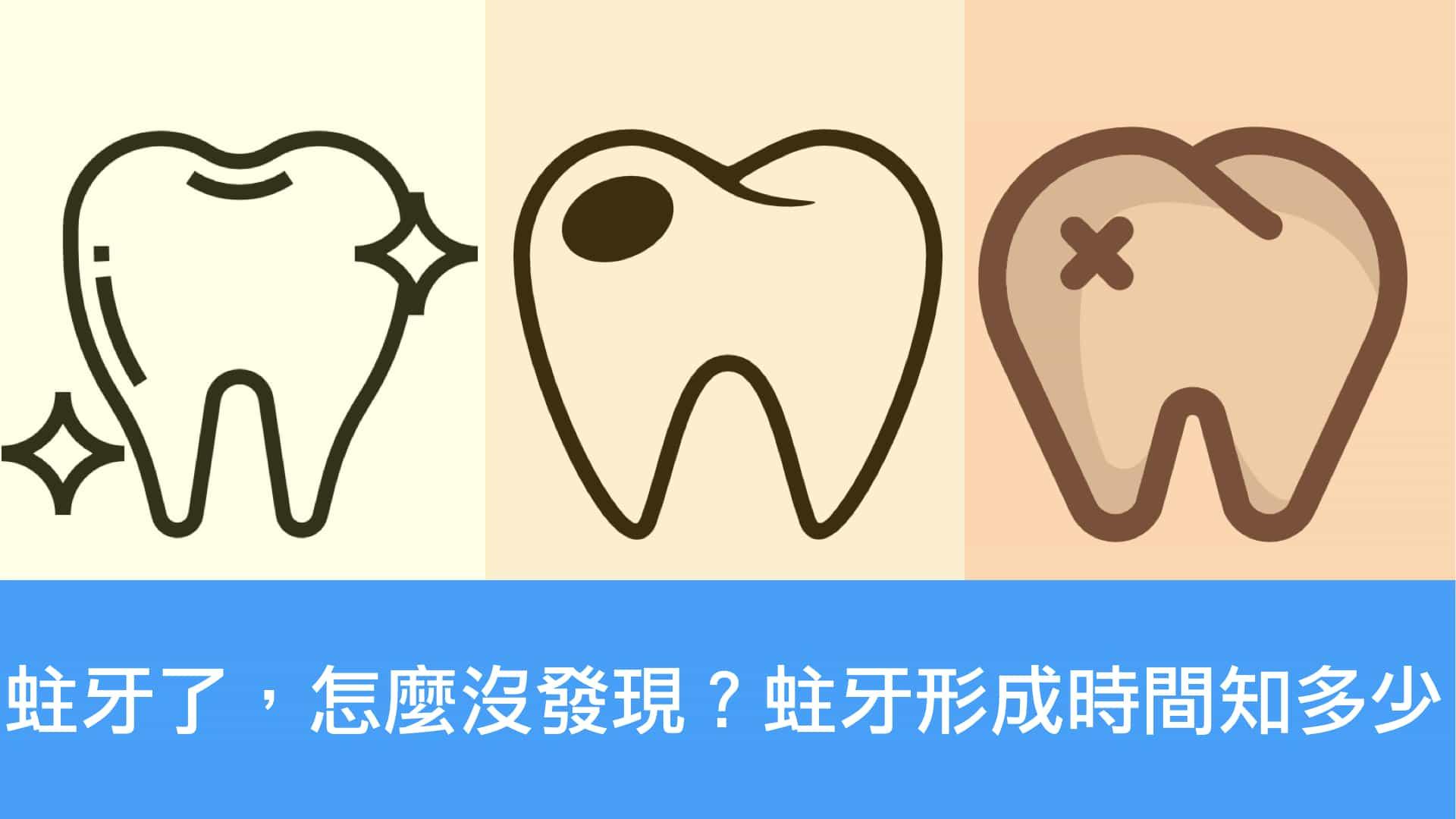 蛀牙形成時間