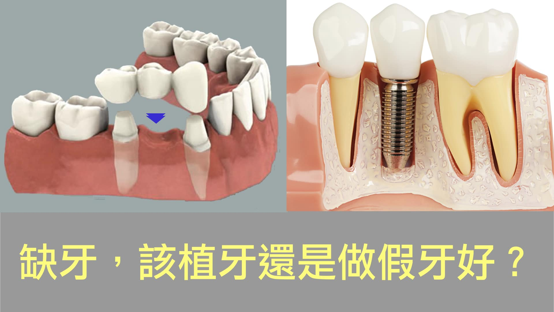 植牙或假牙