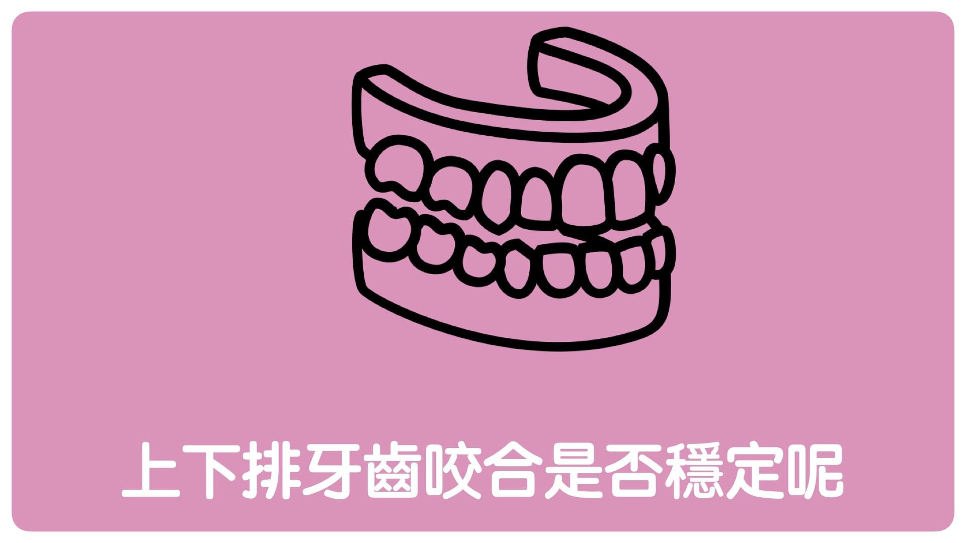 牙齒矯正隱適美