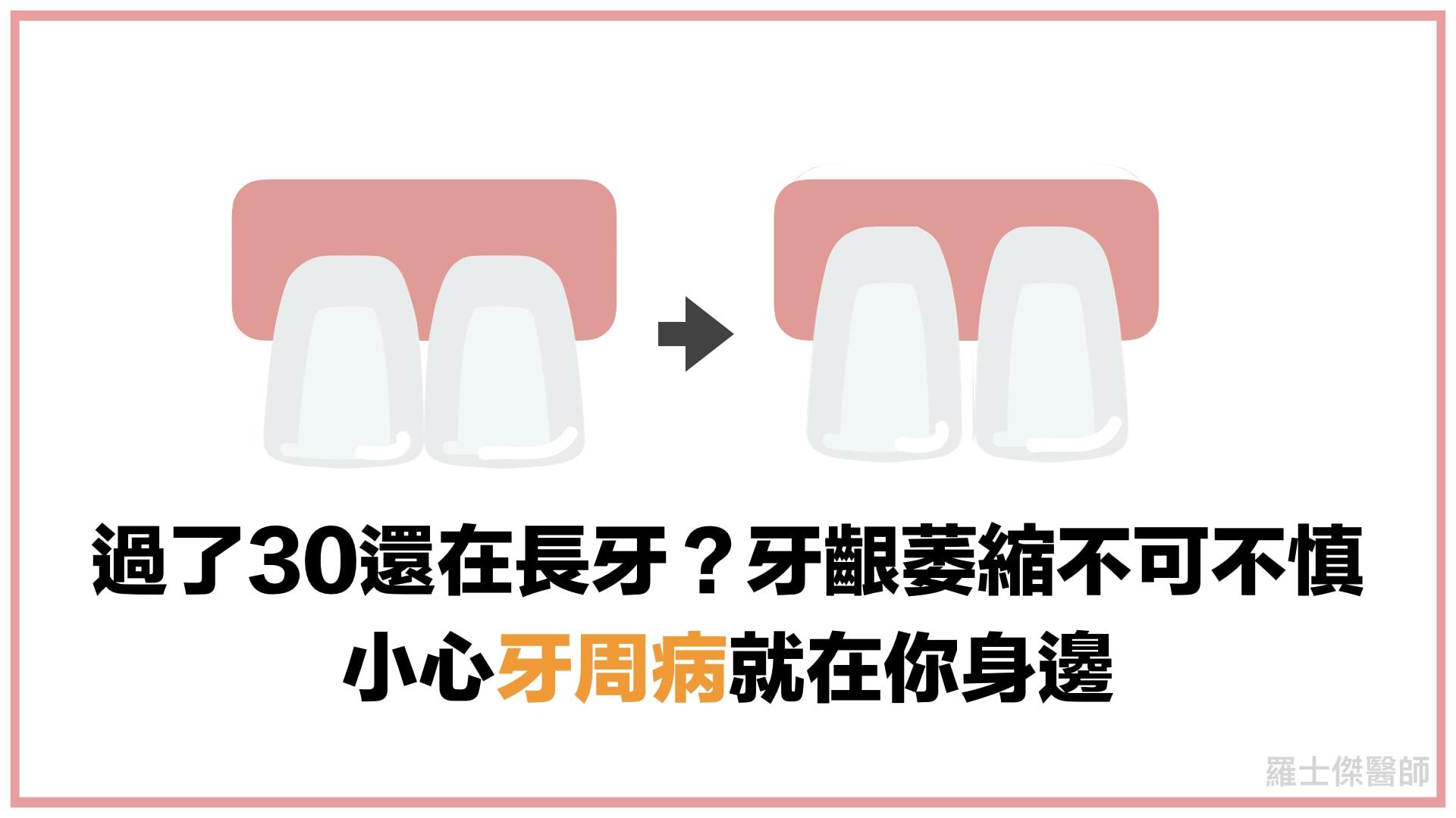 牙齦萎縮-牙周病-羅士傑